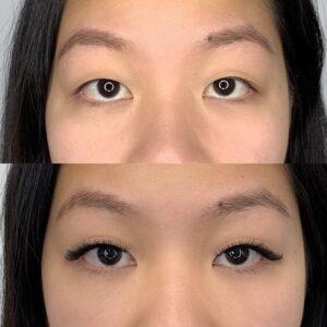 Eyewonderlust Eyelash Extensions for Asian Monolids Eyes - Before and After Cosmetic Treatment and Correction Comparison Black Hair