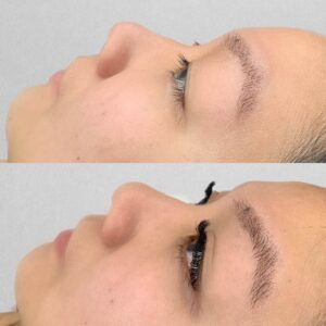 Eyewonderlust Eyelash Extensions for Asian Monolids Eyes - Before and After Cosmetic Treatment and Correction Comparison Thick