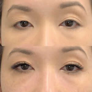 Eyewonderlust Eyelash Extensions for Asymmetrically Shaped Eyes - Before and After Cosmetic Treatment and Correction Comparison 2