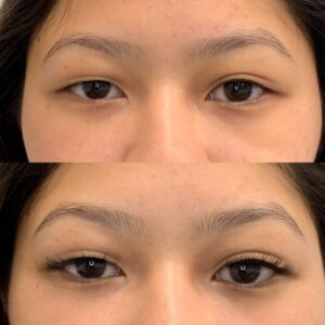 Eyewonderlust Eyelash Extensions for Asymmetrically Shaped Eyes - Before and After Cosmetic Treatment and Correction Comparison