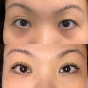 Eyewonderlust Eyelash Extensions for Downward Facing Lashes - Before and After Cosmetic Treatment and Correction Comparison Bright