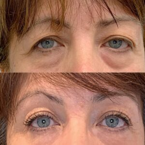 Eyewonderlust Eyelash Extensions for Heavy Droopy Eyelids - Before and After Cosmetic Treatment Comparison